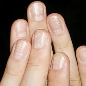 Что если снится подстриженные ногти