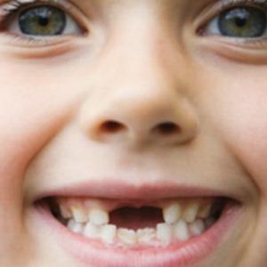 Если вы увидели испорченный зуб у ребенка