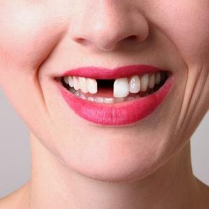 Видеть выпадение зубов без крови