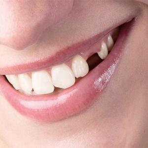 Выпадение зубов во сне – к чему это