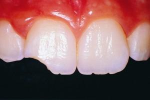 Зуб откололся сонник
