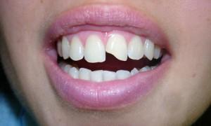 Что означает сон, в котором откололся зуб? Об этом мы можем узнать из сонника