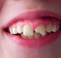 Обсудим, к чему может снится сломанный зуб. Трактовка по соннику