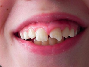 зуб надломанный к снится чему