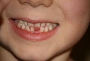 видеть во сне сломанный зуб