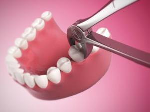 зубы вырывать