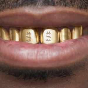 К чему снится золотой зуб