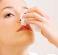 Обсуждаем, к чему снится кровь из носа во сне. Как трактует подобное сонник?