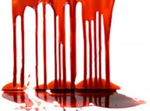 что означает кровь во сне