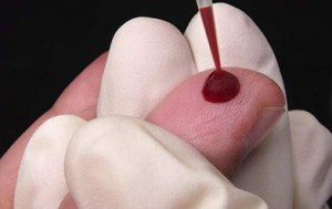Узнаем, к чему снится много крови во сне. Что означает видеть кровь? Разные сюжеты