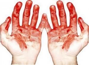 руки в крови во сне