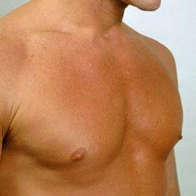 чешется грудь у мужчины