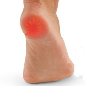 пятка на правой ноге